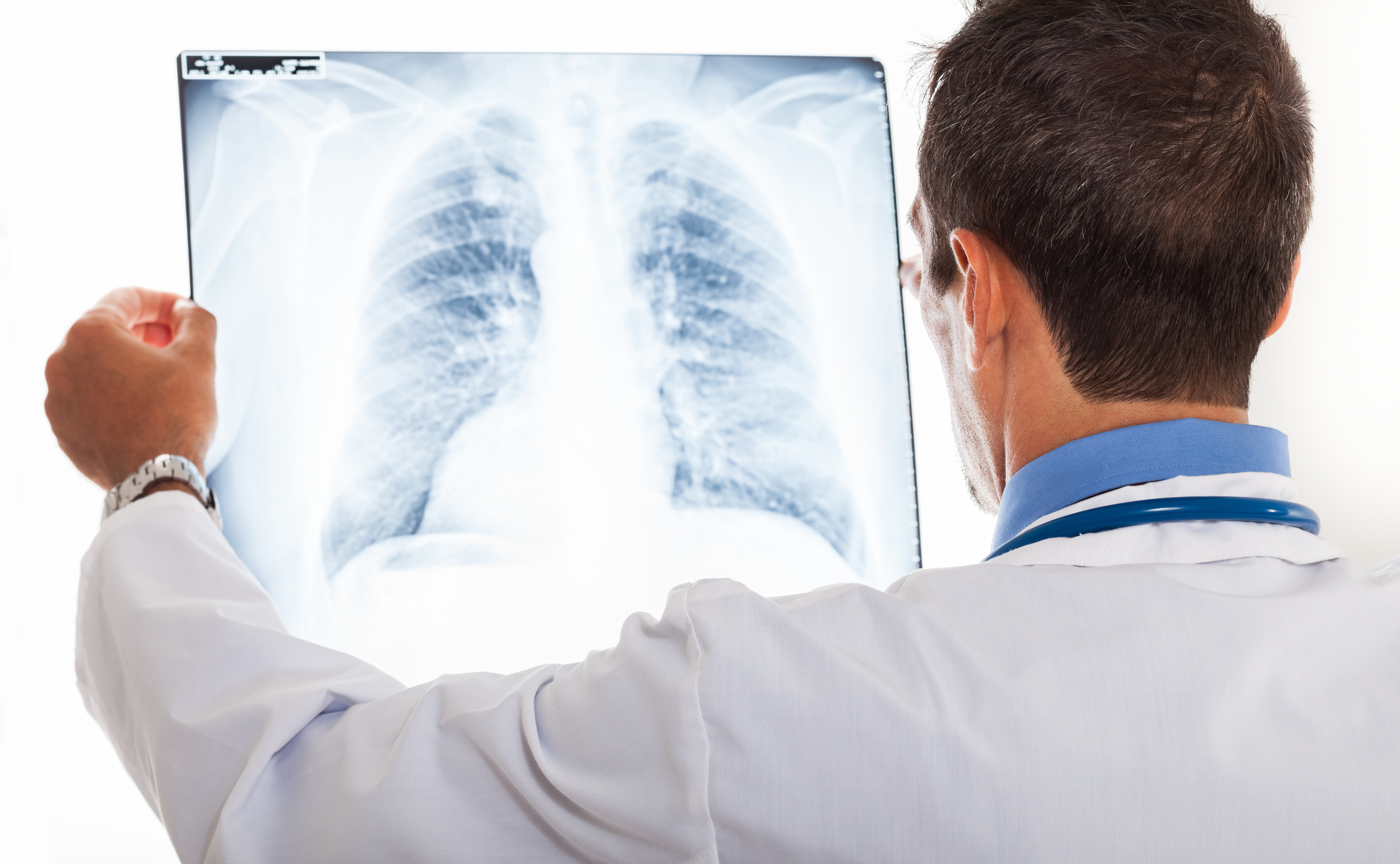 a history of detecting lung cancer at desert radiologists A new technique for detecting cancer by imaging  lung and brain cancer cells that wer  overdiagnosis of pulmonary embolism on ct-angiogram by radiologists may.