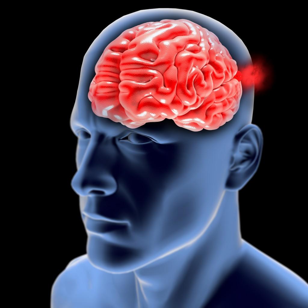 Brain Aneurysm Radiology Consultants